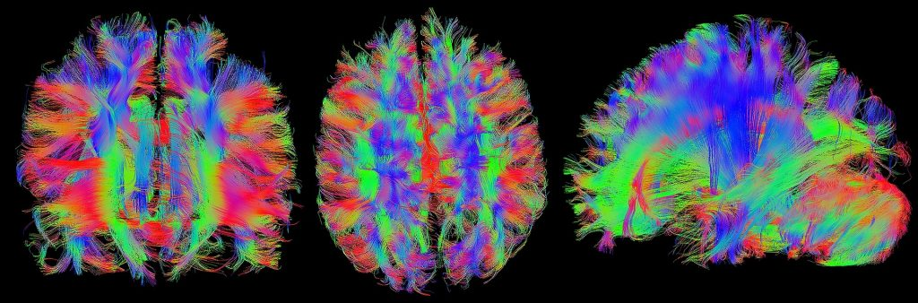 Three diffusion tensor images of the brain's white matter.